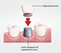 dentalcrownprocedure